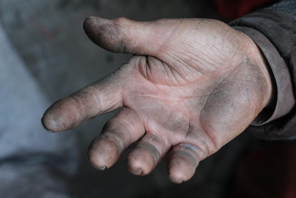 Zhang's hands-photo